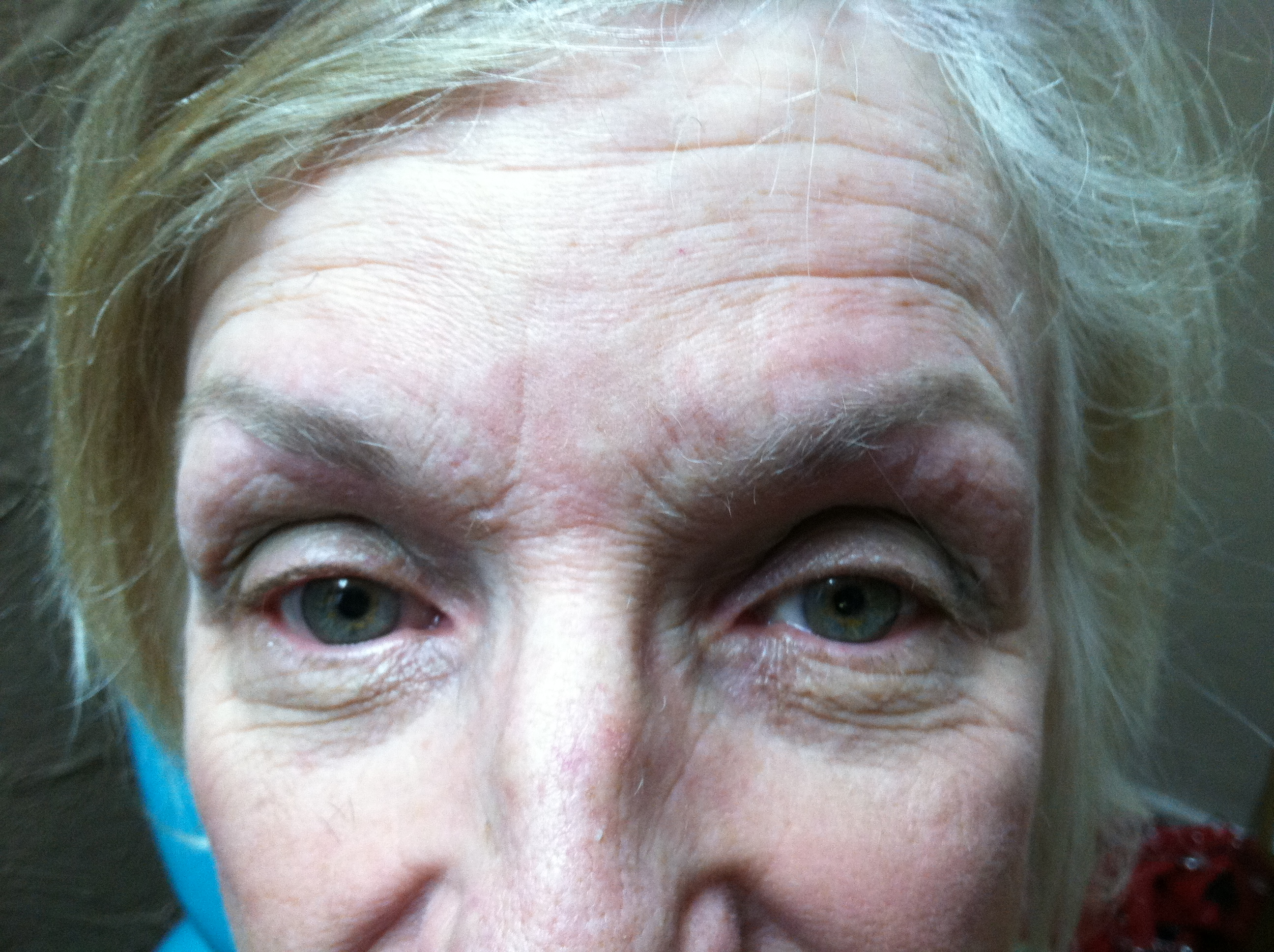 Eyebrow Threading: After