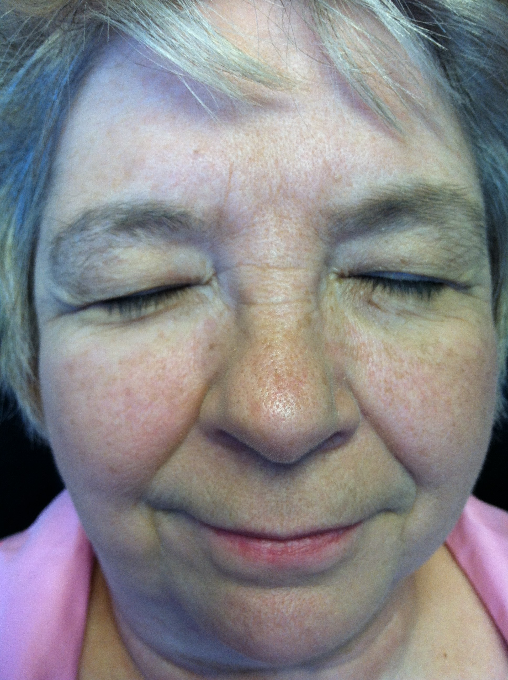 Eyebrow Threading: Before