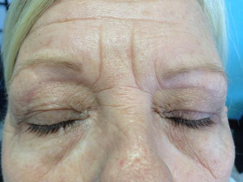 eyelash2-after