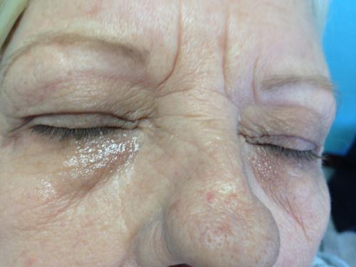 Eyelash Tinting: Before